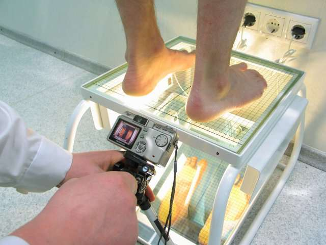 врач ставит диагноз с помощью Подометрии