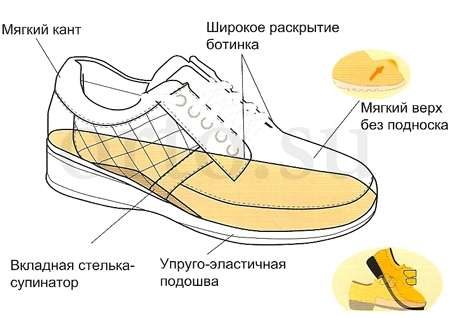 специальная ортопедическая обувь в помощь при плоскостопии